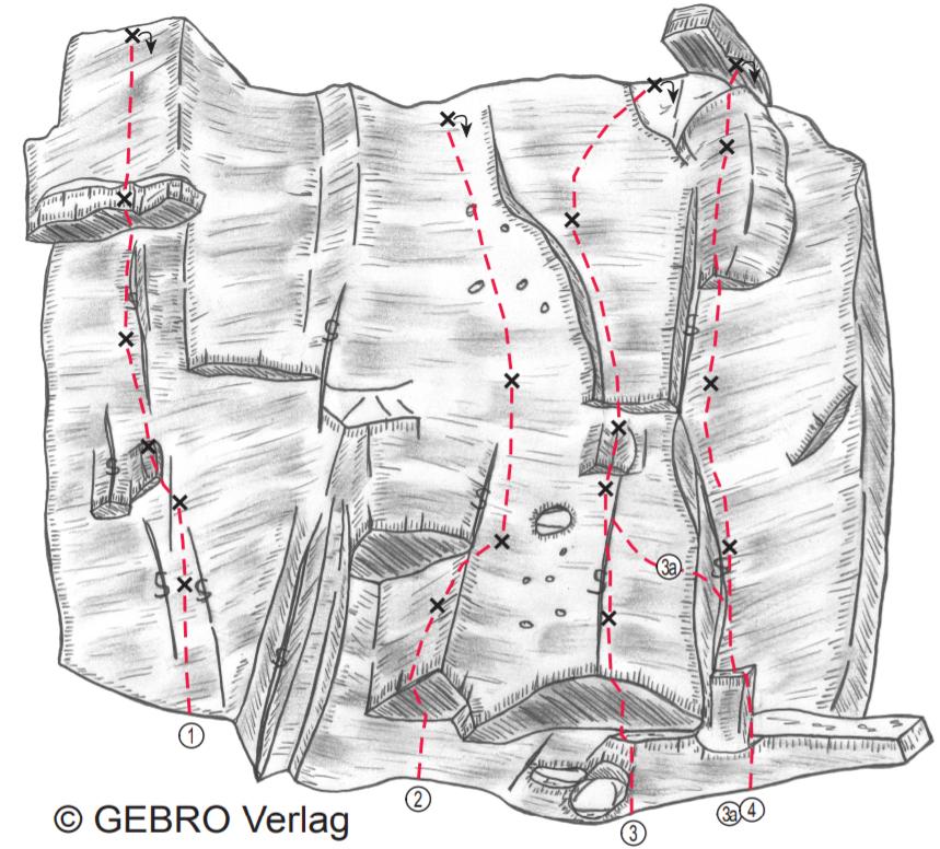 Topo: Treunitzer Kletterblöcke